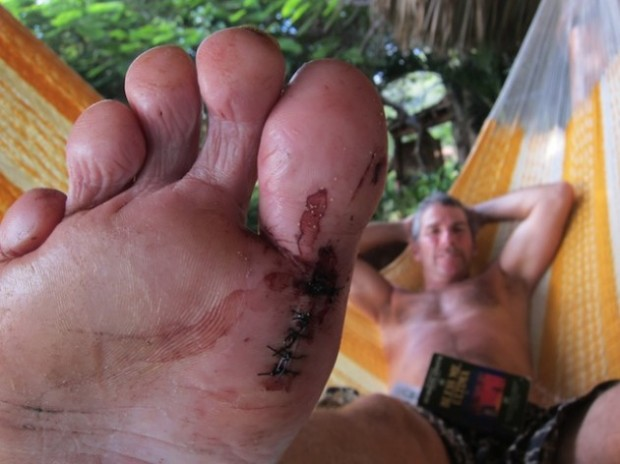 Surf injuries are never welcome nor pretty. Learn how to keep yourself safe to avoid a trip to the medic.