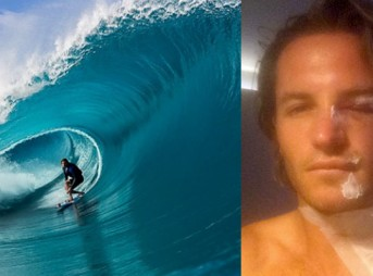 Laurie Towner injured at Teahupoo during Point Break filming.