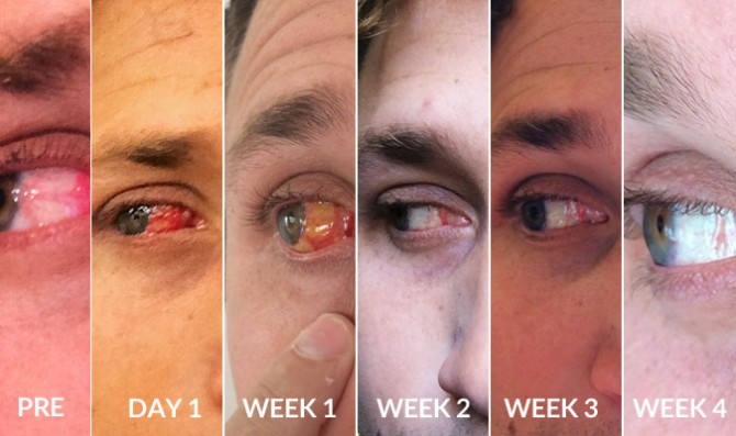 Four weeks and my eye was basically good as new. Pretty crazy.