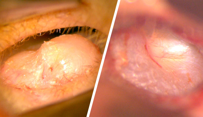 Before (left) and after (right) of the left ear canal. You can now clearly see the ear drum.