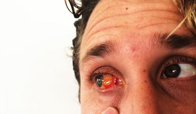 Zach Weisberg, post-surgery.