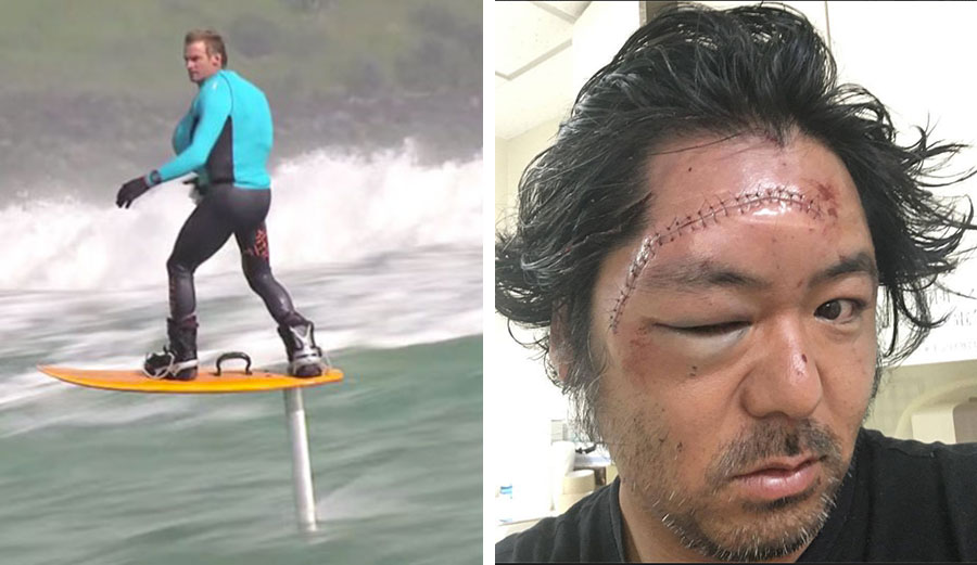 Laird Hamilton, a few years ago on a foil. Recently, a Japanese surfer found out just how dangerous they can be.