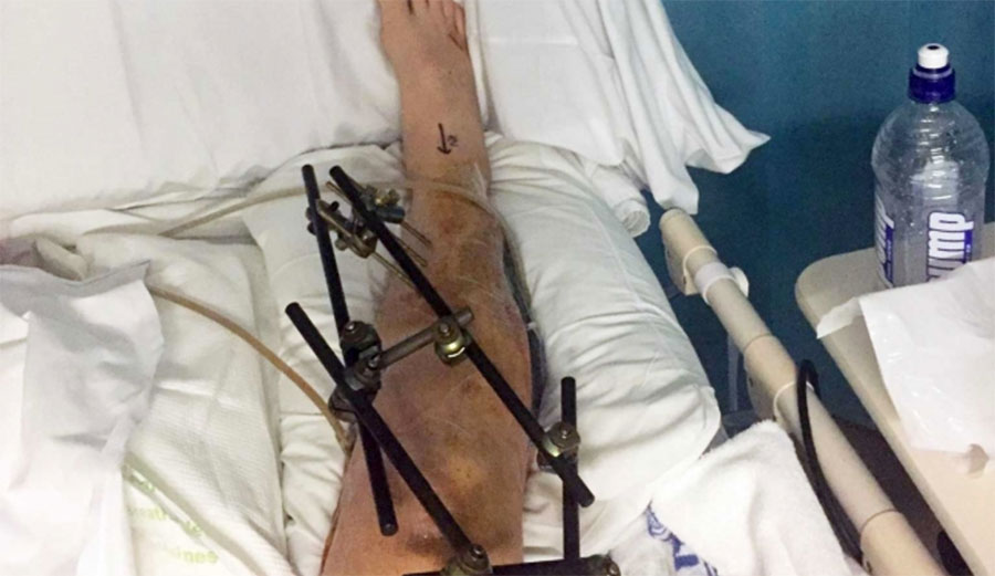 After his wipeout, doctors nearly had to amputate Mathews' leg.