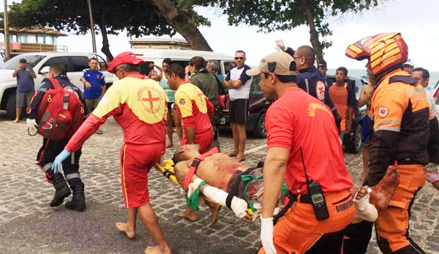 Pablo de Melo had to have his leg amputated after he was mauled by a shark in Brazil. Image: NYPost/FocusOn News