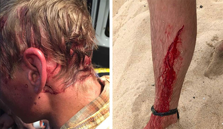 In July of 2017, McWilliams was dragged by his head from his tent by a bear. In April, a shark attacked him in Kauai. Images: McWilliams/Facebook