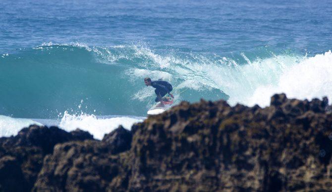 surfing, Arran Strong, Alpha 1 Antitrypsin Deficiency
